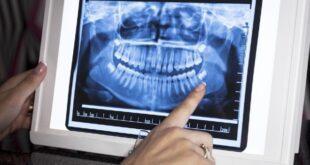 Πανοραμική Ακτινογραφία Δοντιών.. Η χρησιμότητα της